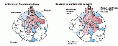 Asma Wikipedia La Enciclopedia Libre