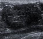Breast US Fibroadenoma 0531093541828 Nevit.jpg