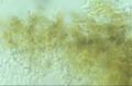 Chaenotheca trichialis 57238663.png