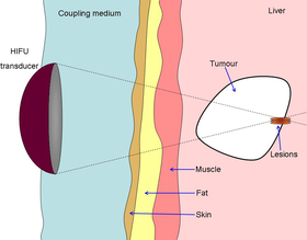 Diagram showing liver lesioning using a HIFU transducer.png
