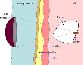 High-intensity focused ultrasound hifu