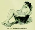 Die Frau als Hausärztin (1911) 179 Sitzbad einer Schwangeren.png