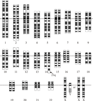 Translocación del brazo corto del cromosoma 21 en uno de los dos cromosomas del par 14.