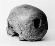 Edinburgh Skull, trepanning showing hole in back of skull Wellcome M0009393.jpg