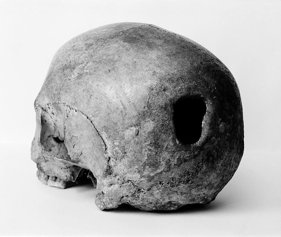 Edinburgh Skull, trepanning showing hole in back of skull Wellcome M0009393