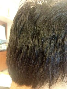 Severe dryness of scalp resulting in Dandruff.