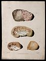 Four sections of diseased kidney. Colour mezzotint by W. Say Wellcome V0009745EL.jpg