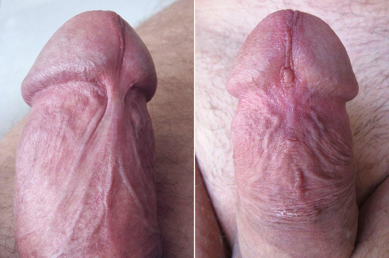 frenulotomia pénisz