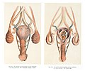 Image of the vagina, uterus and womb Wellcome L0043367.jpg