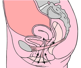 Ben Wa balls - Schematic: anatomical localities which are trained by the balls