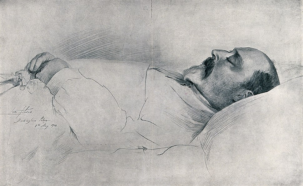 King Edward VII on his deathbed in Buckingham Palace in 1910 Wellcome V0042567
