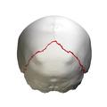 Lambdoid suture - close up - posterior view.png