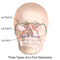 Le Fort Osteotomy.png