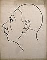 Left profile of head showing depressed frontal lobes, indica Wellcome V0009519ER.jpg