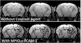 Molecular imaging - Molecular MRI of a mouse brain presenting acute inflammation in the right hemisphere. Whereas unenhanced MRI failed to reveal any difference between right en left hemispheres, injection of a contrast-agent targeted to inflamed vessels allows to reveal inflammation specifically in the right hemisphere.