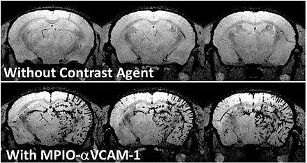 Molecular imaging - Wikiwand