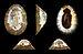 Patella granularis 01.JPG