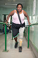 Patient Mukaro Sauna from Dauru walks for the first time in 11 years at the National Orthotic & Prosthetic Services (NOPS), Port Moresby General Hospital, PNG. (10712858673).jpg