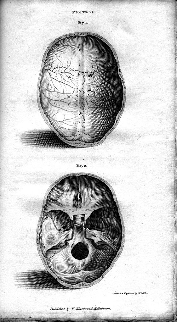 File Plate Vi Human Skull Engraving By William Miller