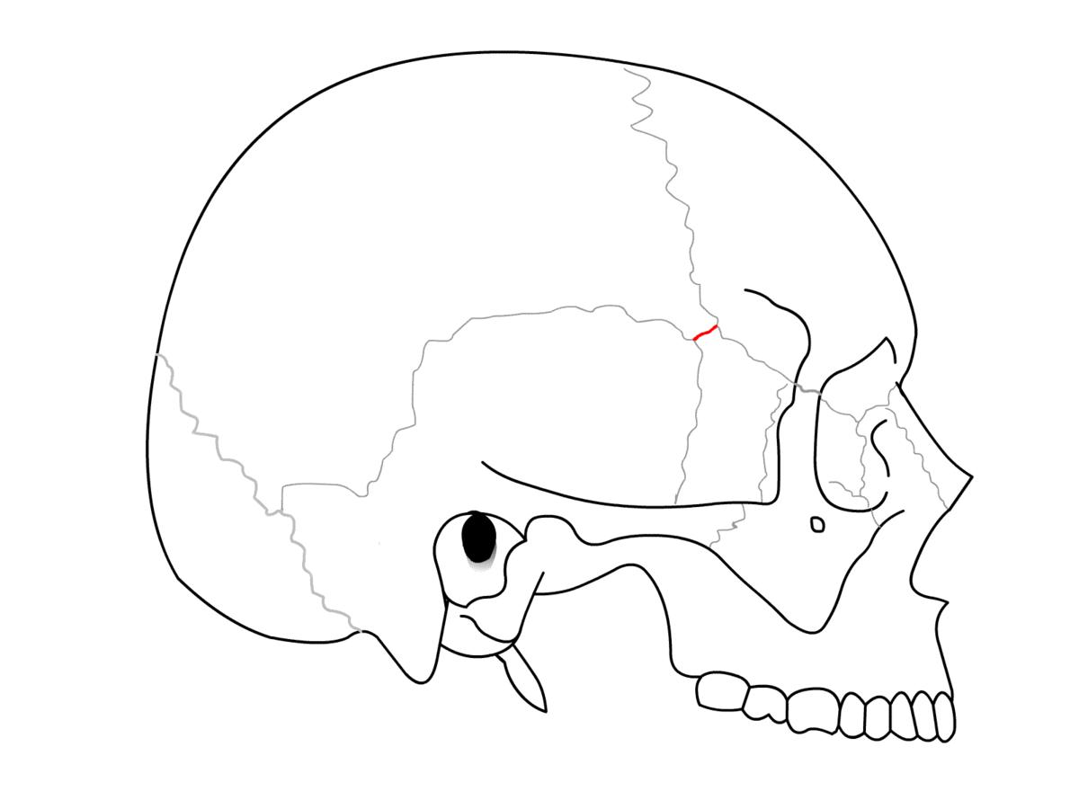 Sphenoparietal Suture Wikipedia
