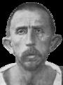 Schizophrenia congenital idiot, age 39. Asthenic v2.png