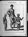 Three human figures with abnormalities Wellcome L0033308.jpg