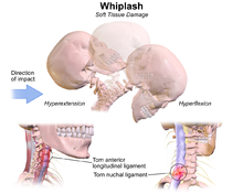 Whiplash (medicine) - Wikipedia