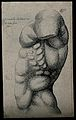 A male torso without an arm, in left profile view. Etching b Wellcome V0007776ER.jpg