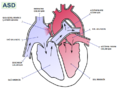 Atrial septal defect-az.png