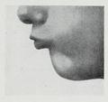 Braus 1921 376.png