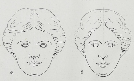 How To Measure Facial Symmetry 109