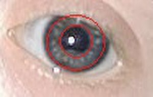 Brushfield spots - The Brushfield spots are the spots between the inner and outer red circles.