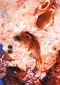 Carcinoma, type unspecified (3922607875).jpg