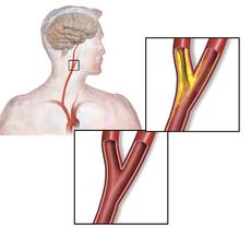 Carotid artery stenosis.png