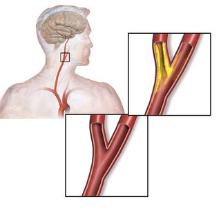 Carotid artery stenosis narrowing or constriction of the inner surface (lumen) of the carotid artery, usually caused by atherosclerosis