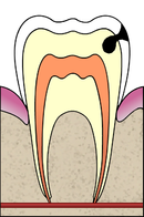 Cavities evolution 3 of 5 ArtLibre jnl.png