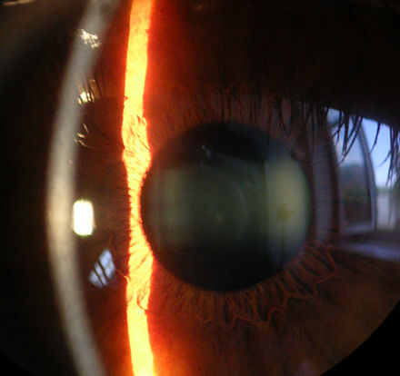 Slit lamp image of the cornea, iris and lens (showing mild cataract) Cornea.jpg
