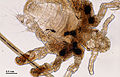 Crab louse (250 18) Male adult, from a human host.jpg
