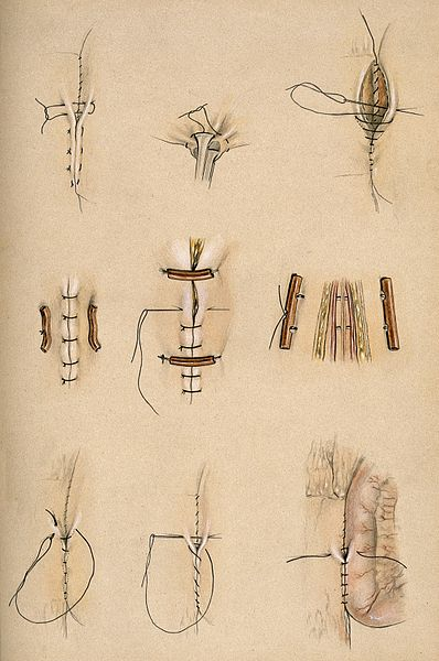 File:Diagrams illustrating various surgical stitches and the tyin Wellcome V0016824.jpg