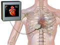 Echocardiogram.png