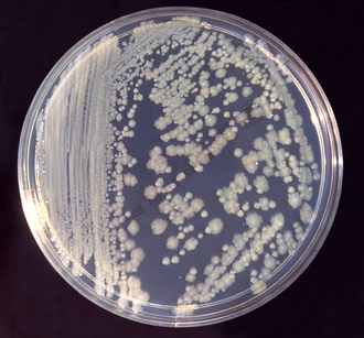 Clinical pathology - Bacteriology: Agar plate with bacterial colonies.