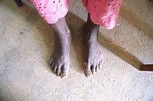 Feet from Burkina Faso10.JPG