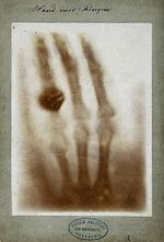 First medical X-ray by Wilhelm Röntgen of his wife Anna Bertha Ludwig's hand - 18951222.jpg