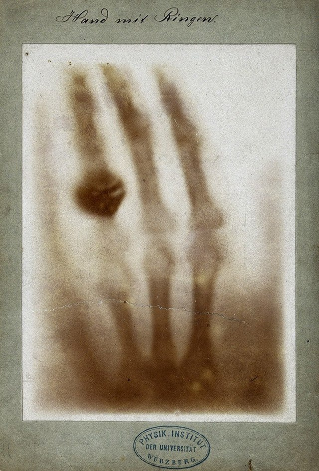 First medical X-ray by Wilhelm Röntgen of his wife Anna Bertha Ludwig's hand - 18951222