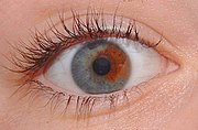 An example of sectoral heterochromia. The subject has a blue iris with a brown section.
