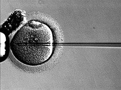 תא זרע מוזרק לתוך ביצית במסגרת ICSI