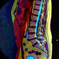 LSV MRI spondylolisthesis T1W T2W STIR 10.jpg