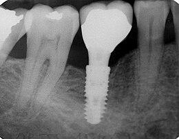 """Résultat de recherche d'images pour """"implant dentaire"""""""