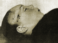 Murdered Andrey Yushchinsky after being found in March 1912.png