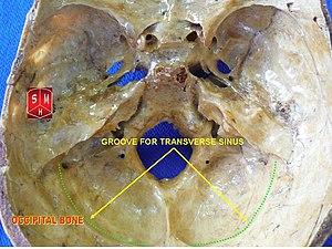 Groove for transverse sinus